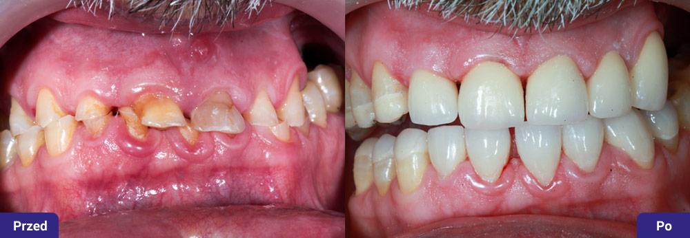 Zaawansowane starcie patologiczne zębów z brakami miedzyzębowymi