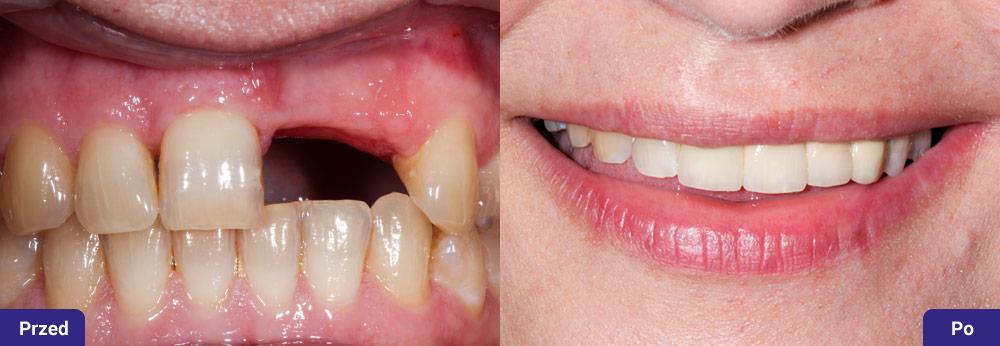 Odbudowa brakujących zębów mostem całoceramicznym